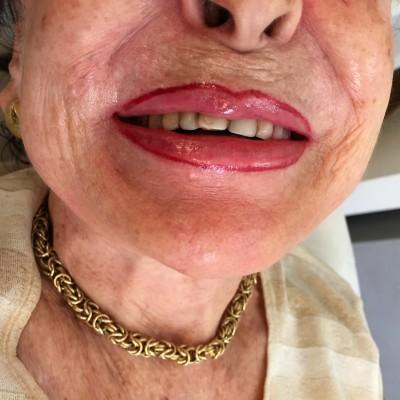 איפור שפתיים קבוע
